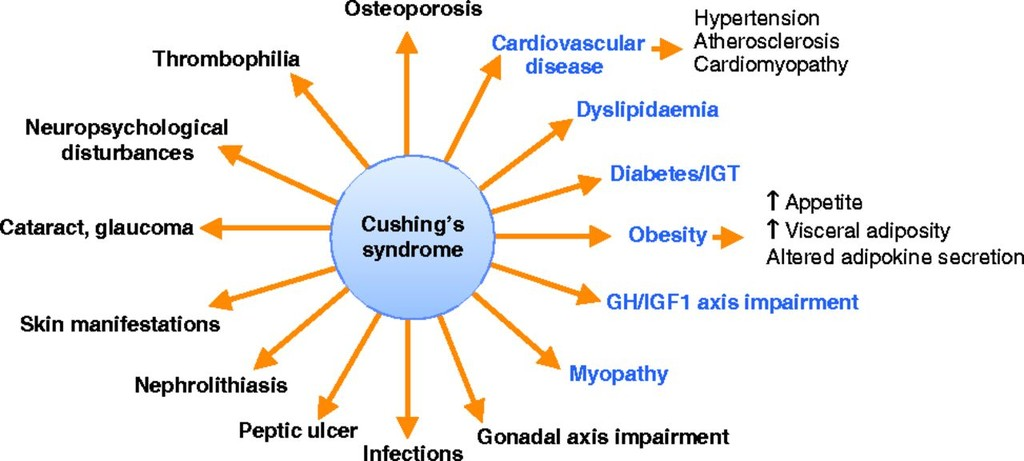 Metabolic comorbidities in Cushing's syndrome in: European Journal