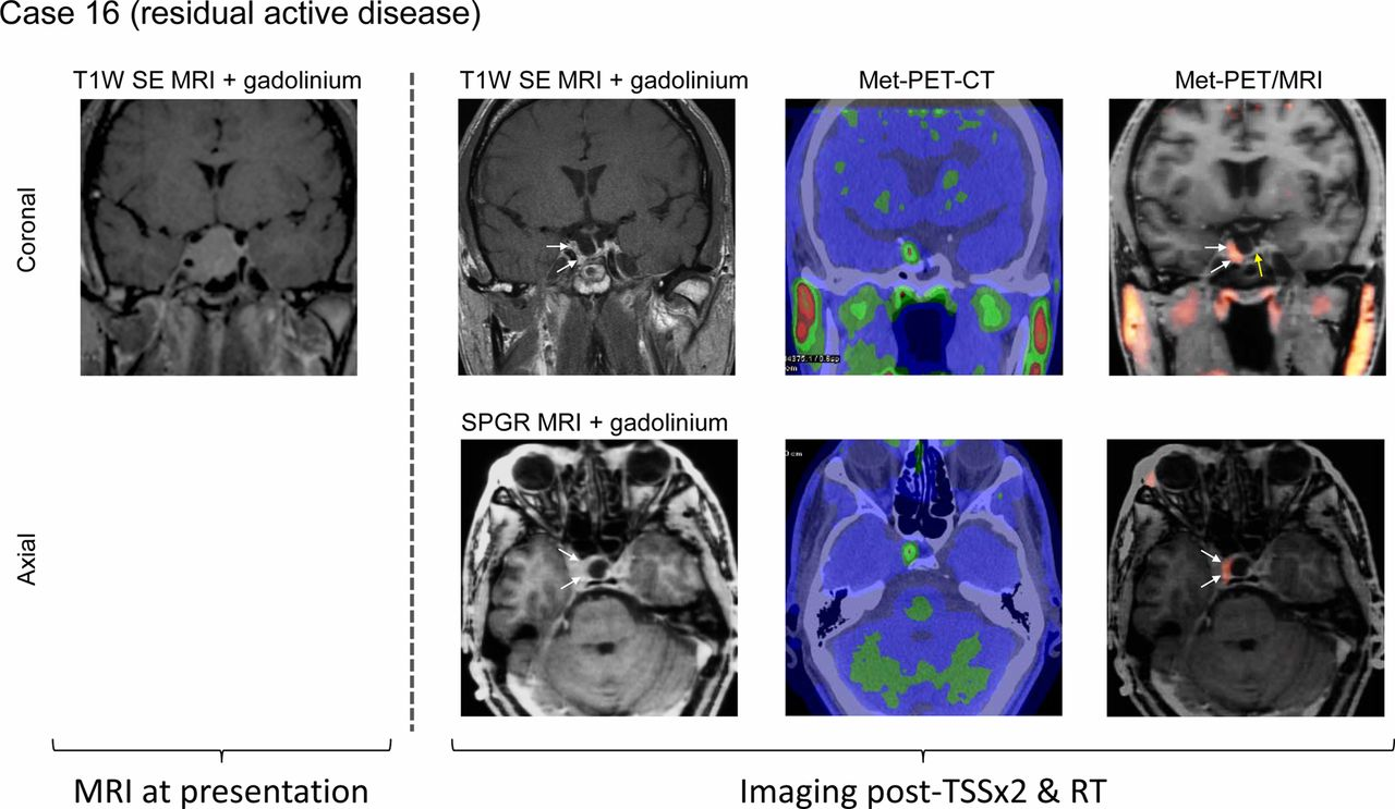 Successful treatment of residual pituitary adenoma in persistent ...